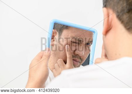 A Middle-aged Man Looking In The Mirror And Worried About Blemishes And Wrinkles On His Face On Whit