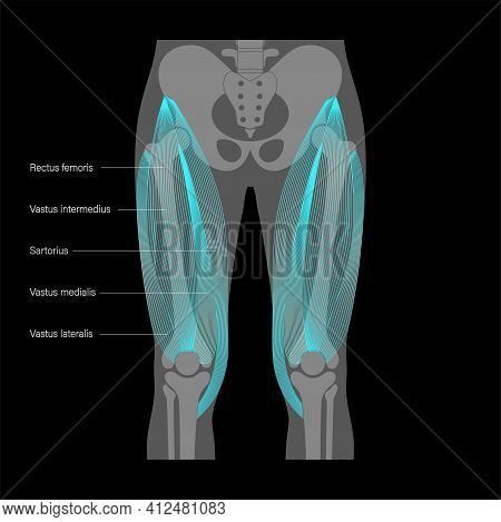 Pelvis And Hip Bones With Quadriceps Muscles On Xray Image. Human Muscular System. Skeleton Anatomic