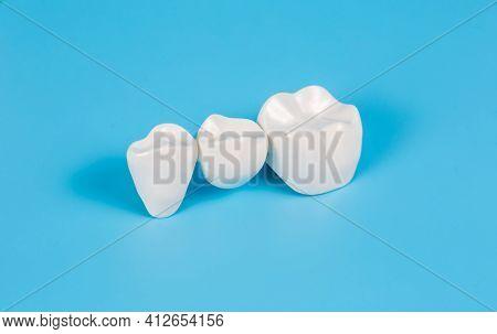 Plastic Dental Crowns, Imitation Of A Dental Prosthesis Of A Dental Bridge For Three Teeth On A Blue