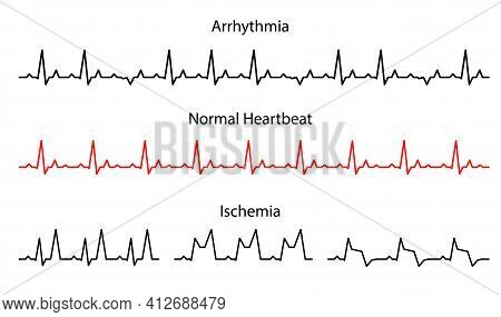 Set Lines Heartbeat Normal, Arrhythmia And Ischemia.