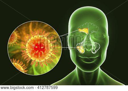 Viral Sinusitis, Inflammation Of Paranasal Cavities. 3d Illustration Showing Inflammation Of Frontal