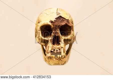 The Skull Of The Floresian Hobbit Man With A Lower Jaw (latin: Homo Floresiensis) Is Isolated On A W