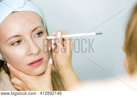 Woman At A Beauticians Appointment. A Specialist Examines It And Makes Markings With A Special Penci