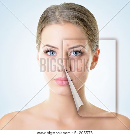 portrait of beautiful woman with problem and clean skin, aging and youth concept, beauty treatment poster