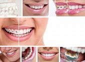 dental braces - lingual braces, before and after poster