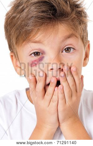 Portrait of boy with real eye bruise, isolated on white background poster
