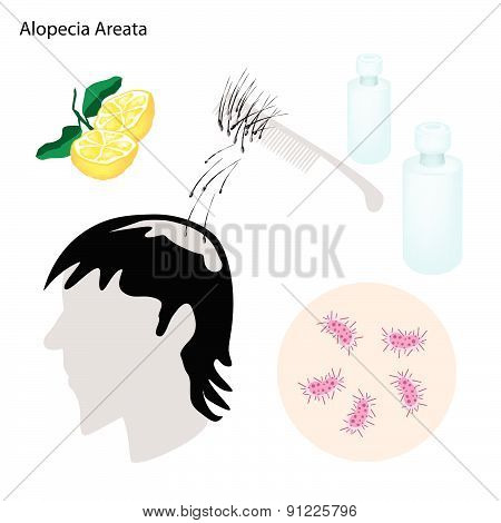 Alopecia Areata With Disease Prevention And Treatment