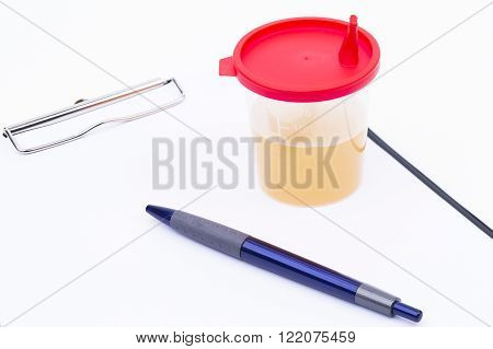 Image shows a memo pad with pen and urine sample