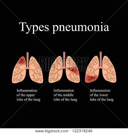 Pneumonia. The anatomical structure of the human lung. Type of pneumonia.  Vector illustration on a