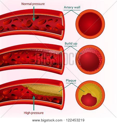 Beautiful vector illustration of blood pressure infographic. Abstract medicine concept.
