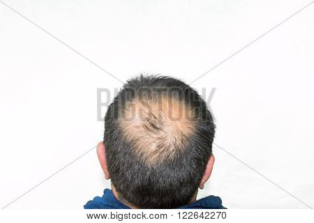Mature yang man, seen from behind, in the head, begins to lose hair, he begins to be old.