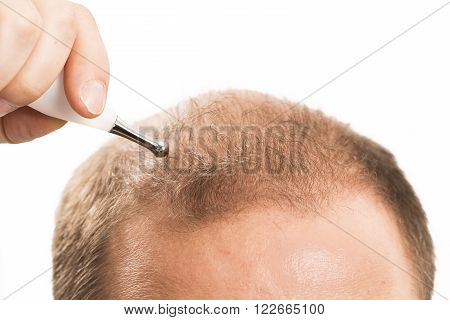 Baldness Alopecia man hair loss medicine bald treatment transplantation France