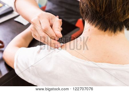Acupuncturist Pricking Needle Into Skin, With Shallow Depth Of Field.