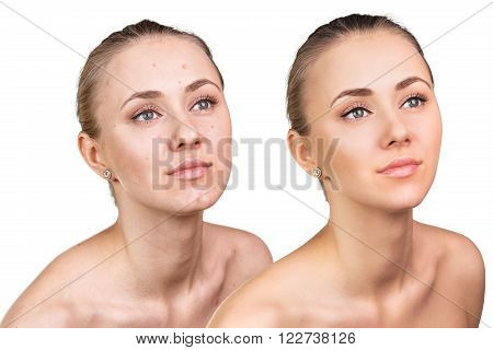 Comparative photos of young woman with skin problems. Before and after treatment.