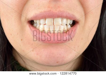 Close Up Of Healthy Teeth Of Young Woman. Dental Health Care. Hygiene Teeth. Dentistry