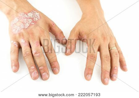Psoriasis vulgaris on the mans hands with plaque, rash and patches, isolated on white background. Autoimmune  genetic disease.