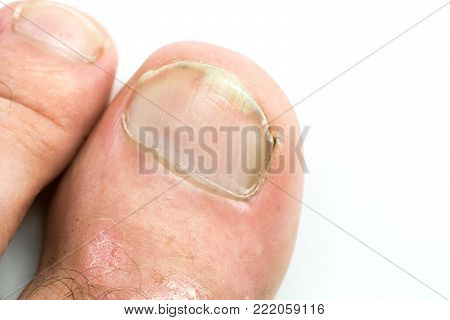 Closeup of Psoriasis vulgaris and fungus on the mans foot finger nails with plaque, rash and patches, isolated on white background. Autoimmune genetic disease.