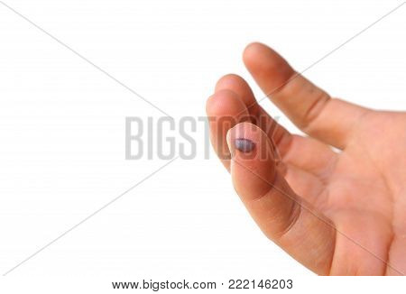 Blood Blister in the Finger isolated on white