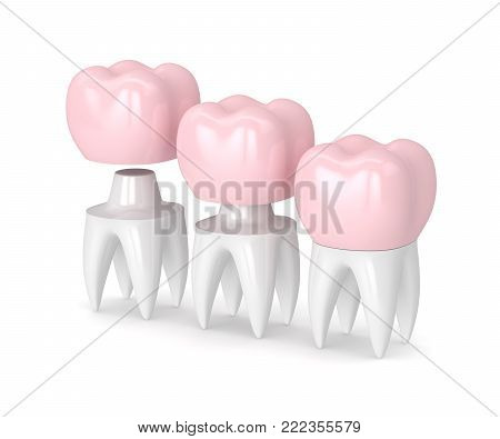 3D Render Of  Replacement Crown Cemented Onto Reshaped Tooth