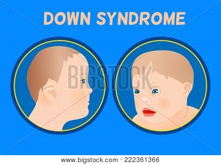 Symptoms of down syndrome poster. Abnormal ears, short hands, flattened face and nose, heart disease, big toes widely spaced. Vector illustration in blue and beige colors with little boy image.