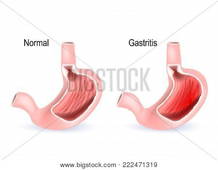 Cross section of two stomach: healthy and Gastritis (inflammation of the lining of the stomach). Human anatomy. Vector diagram for medical, science, and educational use.