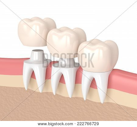 3D Render Of  Replacement Crowns Cemented Onto Reshaped Teeth