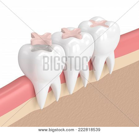 3D Render Of Teeth With Dental Inlay Filling