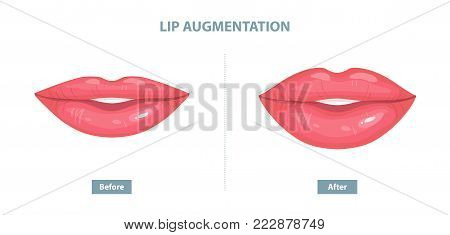 Lip Augmentation. Before and after lip filler injections. Vector illustration