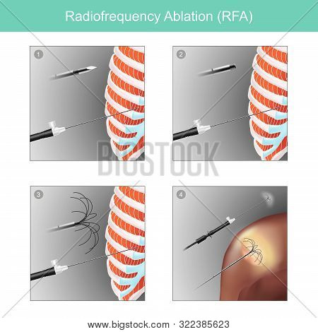 Sample Illustrations For The Treatment Of Tumour  In Human Organs  Using High Frequency Radio Waves