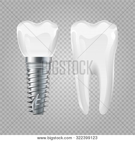 Dental Implant. Realistic Healthy Tooth And Implant. Vector Dental Surgery Elements. Tooth And Impla