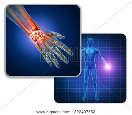 Human Hand Joint Pain Concept As Skeleton And Muscle Anatomy Of The Body With A Group Of Sore Wrist