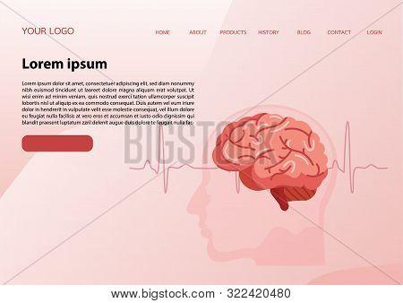 Web Banner Design Template. Scientific Medical Illustration Of Human Brain Stroke Illustration.types