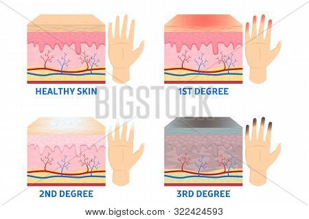 Frostbite Stages. Frostbitten Finger, Hypothermia In Cold Season