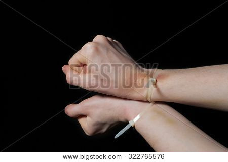 Hands In Handcuffs, Plastic Zip Tie On A Black Background. Big Bruise. Fear And Helplessness. Attemp