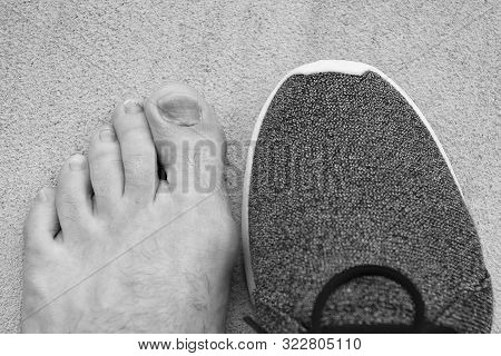 uncomfortable shoes. nail fungus. healthy feet. finger disease. hematoma. toe injury. bruise treatment. medical intervention. fracture. Effects wearing uncomfortable footwear. Take care of your feet poster