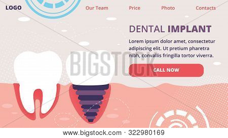 Dental Implant Horizontal Banner. Healthy Tooth And Implanted Structure With All Parts As Crown, Abu