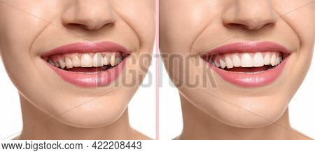 Collage With Photos Of Woman Before And After Teeth Whitening, Closeup. Banner Design