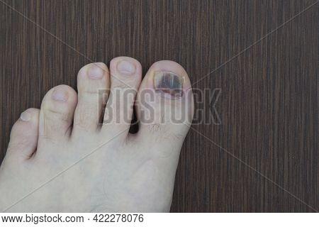 A Damaged Toenail On A Person's Big Toe.