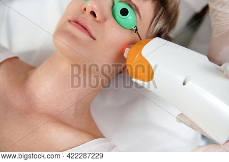 Partial View Of Young Woman With Protective Uv Goggles Receiving Laser Treatment With Modern Laser A