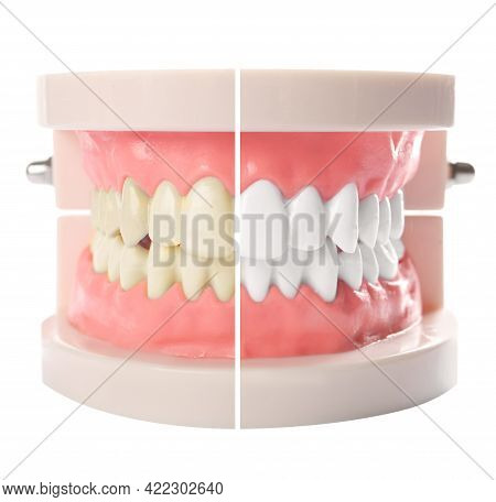 Model Of Oral Cavity With Teeth Before And After Whitening On White Background