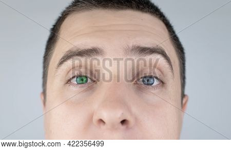 A Man With Different Color Eyes Looks Into The Frame. The Right Eye Is Blue And The Left Is Green. H