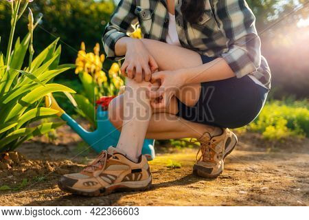 Allergies And Insect Bites Concept. Person Scratches Her Legs, Which Is Itchy From A Mosquito Bite.