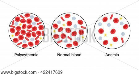 Normal Blood, Polycythemia And Specimen With Anemia Disease. Human Blood Cells Structure. Thrombocyt