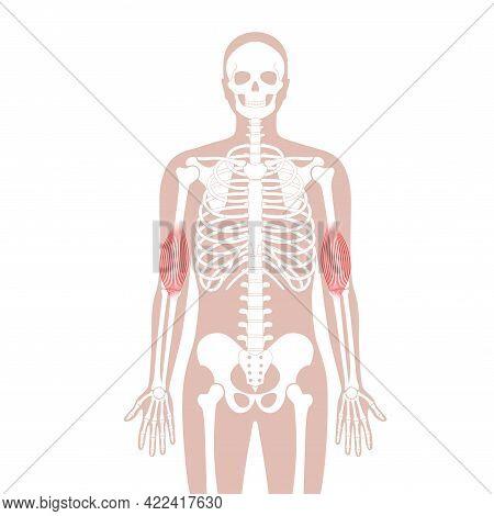 Human Brachialis, Muscular System Concept. Skeleton, Hip, Ribs And Skull Bone Anatomical Poster. Han