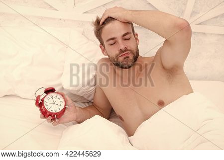 Man Sleeping Bed White Bedclothes And Red Alarm Clock, Lack Of Sleep Concept