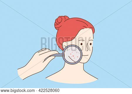 Skin Problems And Beauty Concept. Face Of Young Smiling Pretty Red Haired Woman Cartoon Character Wi