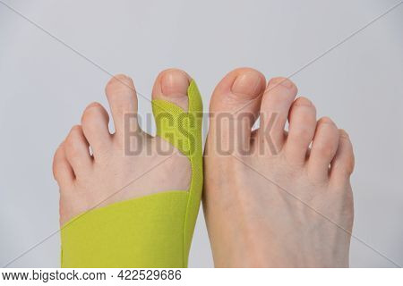Feet Close-up, Top View. There Is A Tap On The Big Toe. Correction Of Finger Deformity. Hallux Valgu