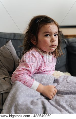Toddler Girl With Chickenpox Measles On The Body. Varicella Virus Childhood Contagious Disease. Itch