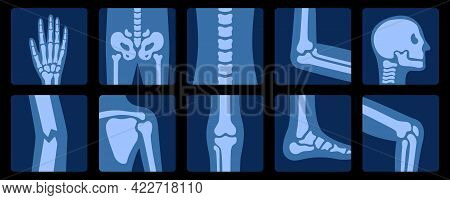 X-ray Of Bones. X-rays Examination Of Human Joint Anatomy. Medical, Educational And Science Illustra