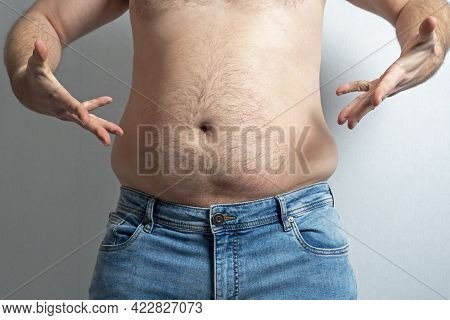 A Man In Blue Jeans Bared A Big Fat Belly And Spreads His Hands